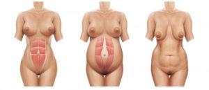 Как изменяется тело во время беременности